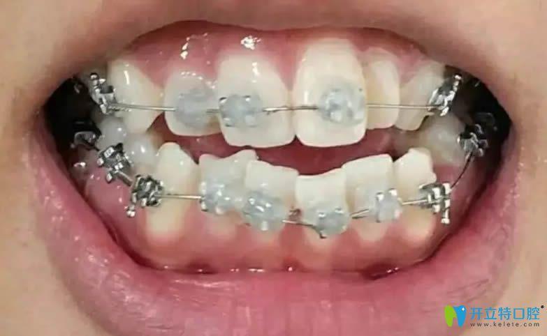 真心觉得在长春欣雅口腔做的牙齿矫正价格不贵且效果好