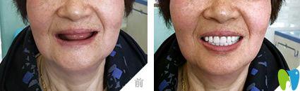 杭州美奥口腔全口种植牙案例