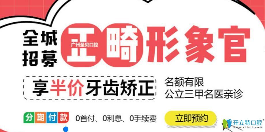 广州圣贝口腔全程招募正畸体验官享半价牙齿矫正, 名医亲诊