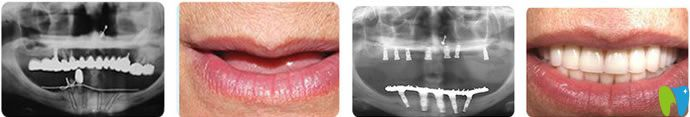深圳哪家种植牙好?鹏程口腔技术/案例/价格共同佐证