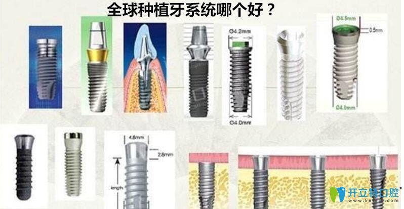 种植牙系统哪个好?来看世界种植体排名详情及价格表