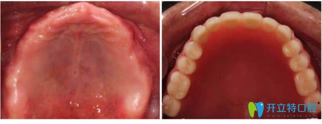 71岁老人半口牙缺失种植牙对比效果图