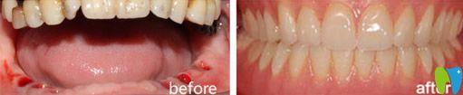 重庆牙博士口腔种植牙效果图