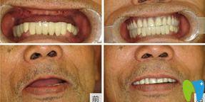 水激光种植牙技术前后对比图