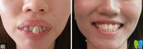 深圳拜尔口腔牙齿矫正案例