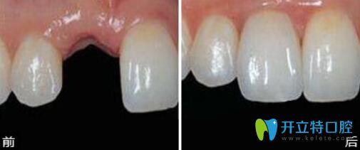 深圳拜尔口腔种植牙真人案例前后效果对比