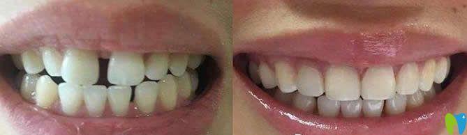 牙齿稀疏树脂贴面修复前后对比图