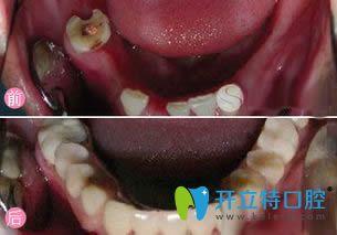 兰州康美口腔多颗牙种植效果对比图