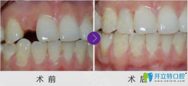 洛阳拜博口腔单颗牙缺失种植牙前后对比效果