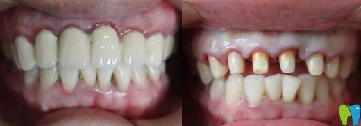 烤瓷牙和全瓷牙区别真大呀!谈在兰州康美口腔做全瓷牙体会
