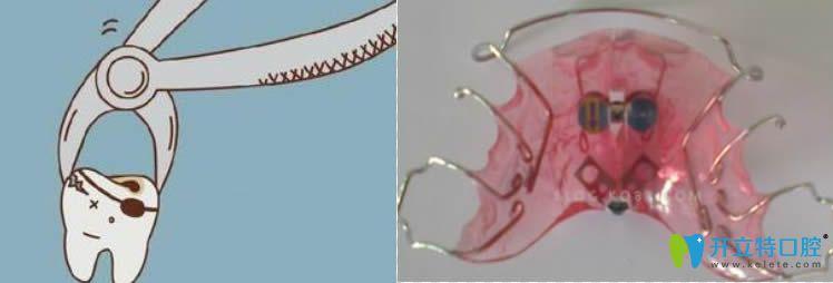 两者利弊解析牙齿矫正是拔牙好还是扩弓好