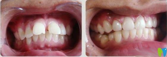 隐适美龅牙矫正前后对比图