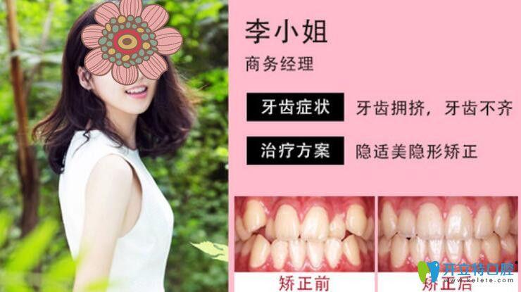 上海尤旦口腔做隐适美案例效果图