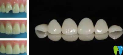树脂牙齿贴面