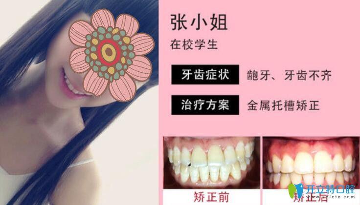 上海尤旦口腔牙齿矫正咋样?专家真人案例及评价公布