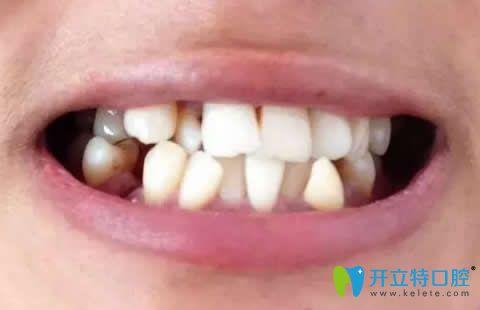 牙齿拥挤在廊坊鹏飞口腔做半隐形陶瓷托槽矫正后堪比整容