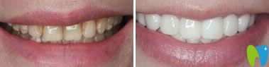 牙黄树脂贴面修复效果