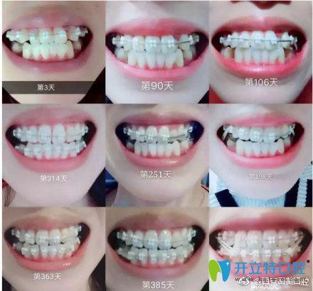 带牙套1-12月变化图