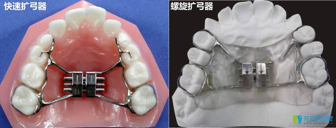 牙齿矫正扩弓器的图片