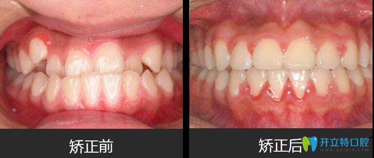 上海德伦口腔正畸好吗?张蕾地包天、虎牙矫正案例来验证