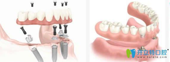 湛江致美口腔ALL-ON-4种植牙技术
