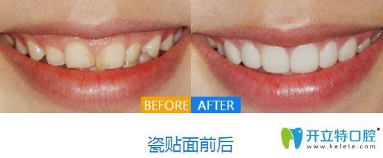 牙齿美白修复前后变化图