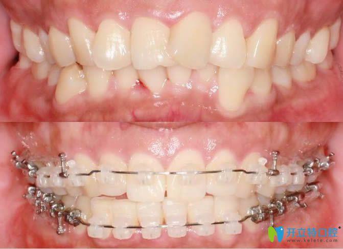 新出恒牙长歪矫治归位对比图