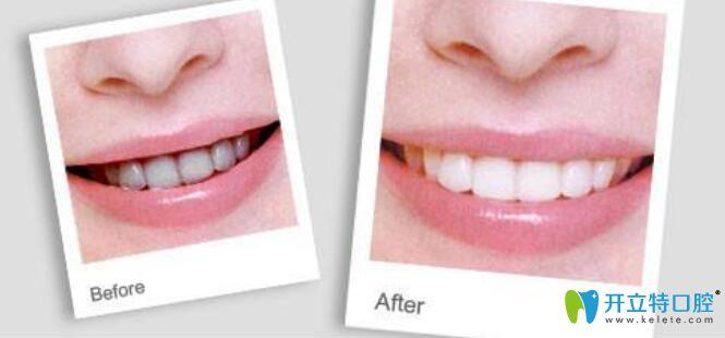 牙齿喷砂和抛光区别是什么,哪个好