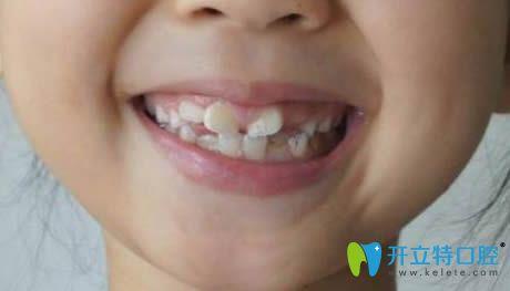 小孩新出恒牙长歪图片