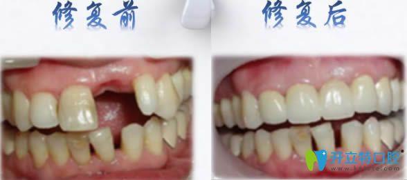 安卓健种植牙前后对比效果图