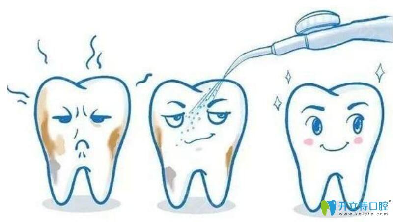 洗牙时喷砂就是抛光吗