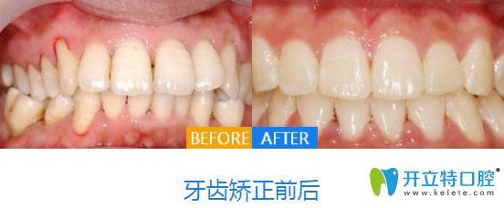 西安画美口腔牙齿矫正效果图