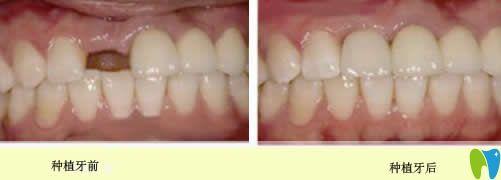 单颗牙缺失种植前后对比图
