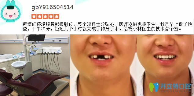 门牙缺失在拜博做完种植牙对比图