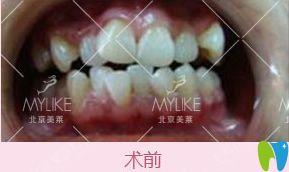 在北京美莱口腔做隐形牙齿矫正500天牙套毕业打卡,脸型变了
