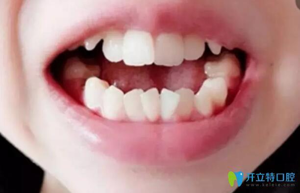 我牙齿拥挤不齐在汉中小白象做了牙齿矫正 现在已经117天啦
