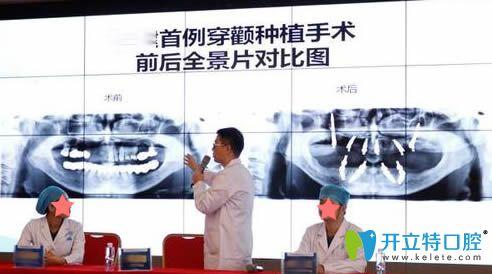 穿颧种植是什么?杭州美奥口腔王明教授讲解穿颧种植的利弊