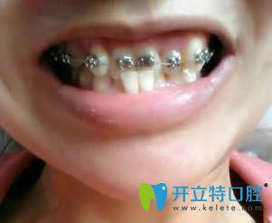 在上海沪申五官科医院口腔科做的正畸终于可以下牙套啦!