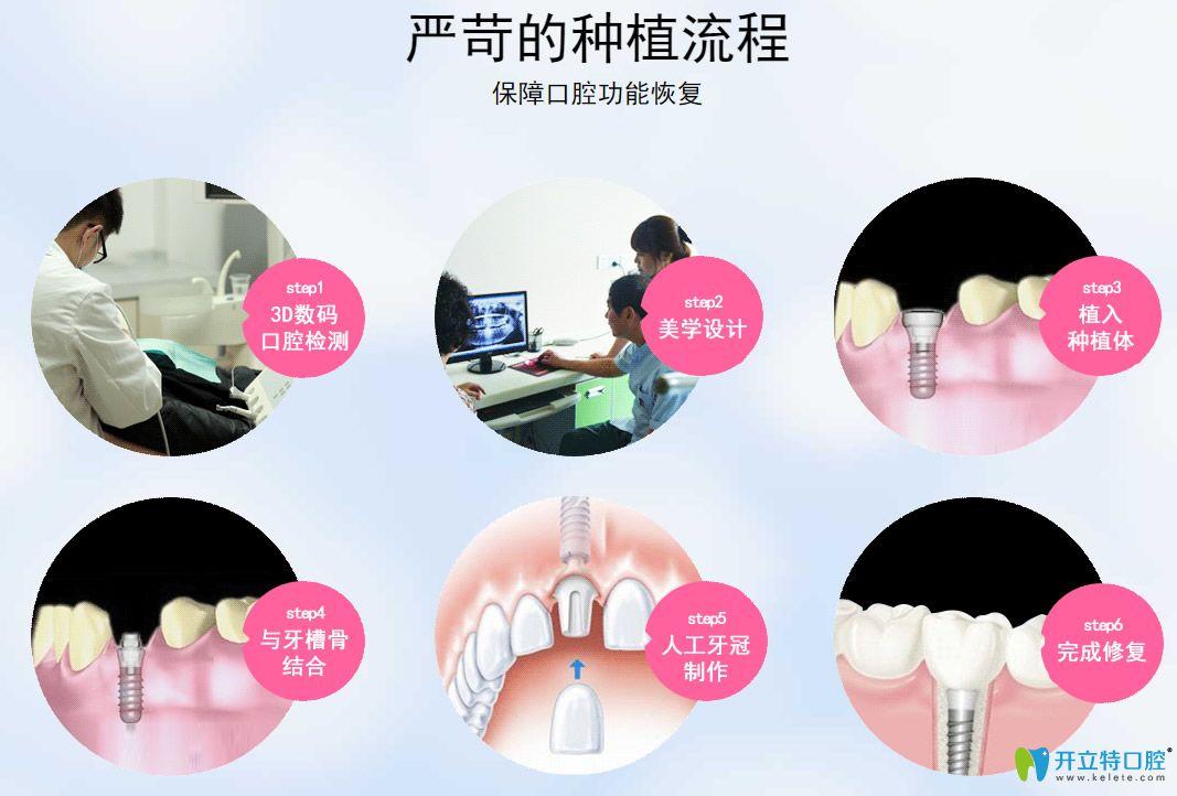 微创种植牙种植流程