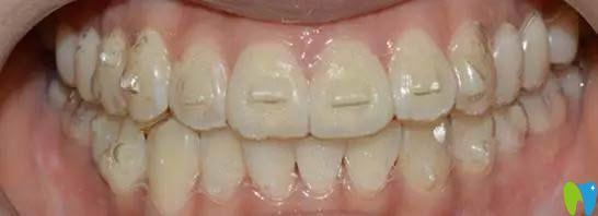 隐形牙套附件作用是什么?网友说这个附件频繁掉是怎么回事