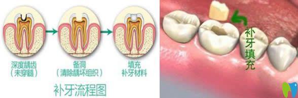 有关补牙会不会越补越烂和千万不要去补牙的真相大揭秘
