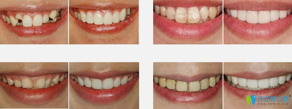 爱思特口腔正规吗?武汉爱思特口腔德国3D齿雕修复牙齿案例公布