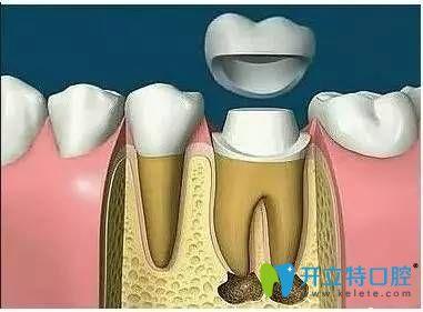 根管治疗后一定要做牙套吗?详解做根管后不戴牙套的危害