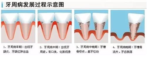 整牙会导致牙龈萎缩吗?整牙后牙龈萎缩怎么办?
