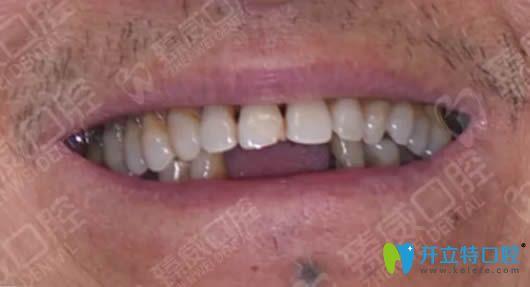 上海臻威口腔allon4种植牙真实案例 讲述我种植牙1年后的感受
