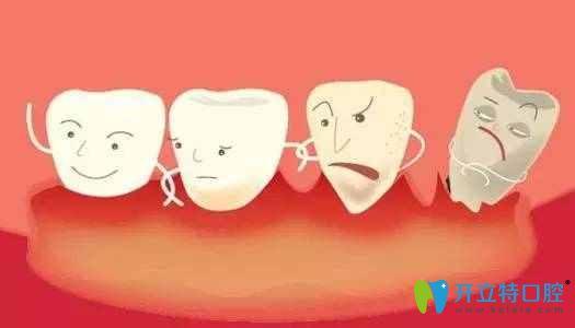 牙周炎能做种植牙吗?详谈牙周炎对种植牙有哪些影响