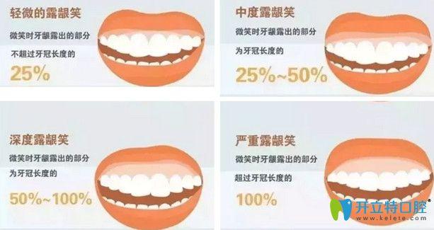 露龈笑的四个阶段