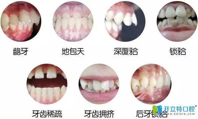 活动翼牙齿矫正的优缺点