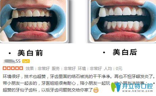 南京牙仙子齿科牙齿美白案例