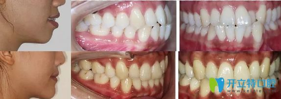 南京牙仙子口腔隐形牙齿矫正案例